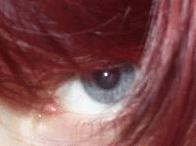Cura degli occhi